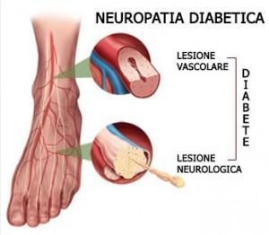 piede-diabetico
